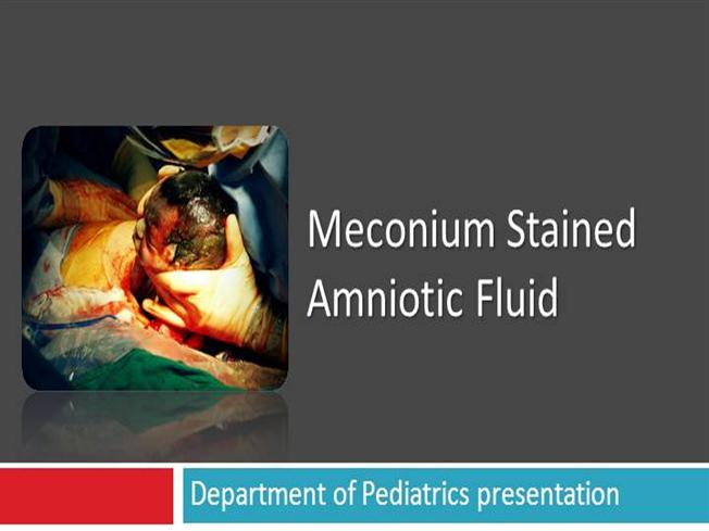 thesis on meconium stained liquor The maternal risk associated with meconium stained liquor is that meconium-laden amnionic fluid embolism [13], puerperal metritis with meconium-stained amnionic fluid is increased two- to four fold and increased risk of operative deliveries [14.