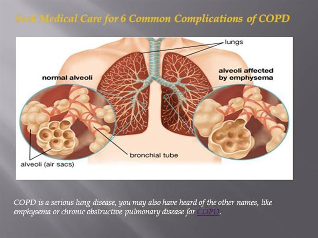 COPD PPT  authorSTREAM