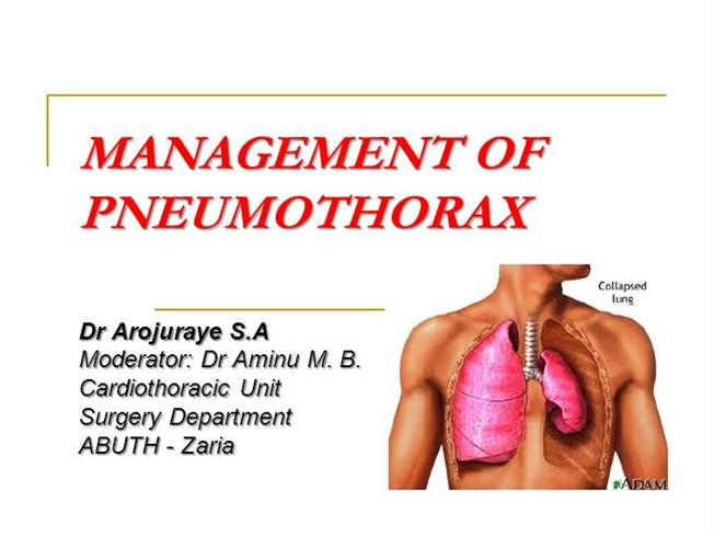 hemothorax symptoms diagnosis and treatment Thoracocentesis /chest drainage • what do we examine - machroscopically - protein, ldh (transudate-exudate differential diagnosis) - cytology - bacterial, fungal typical symptoms: - stabbing chest pain - heavy cough - dyspnoea • in case of tension pneumothorax, and older patients always associated with cardiac.