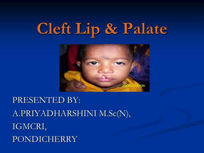 pathophysiology of cleft lip and palate pdf