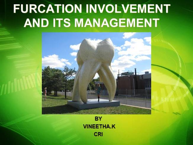 Furcation Involvement And Its Management