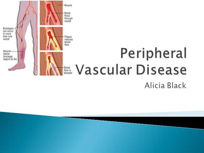 peripheral vascular disease Peripheral vascular disease (pvd) is a slow and progressive circulation disorder it may involve disease in any of the blood vessels outside of the heart and diseases of the lymph vessels - the arteries, veins, or lymphatic vessels.