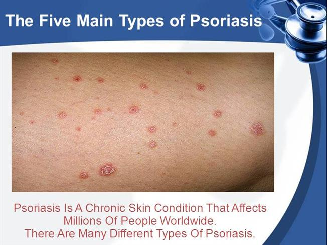 Dating with psoriasis