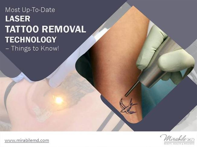 Laser tattoo removal in kansas city things to know for Post laser tattoo removal