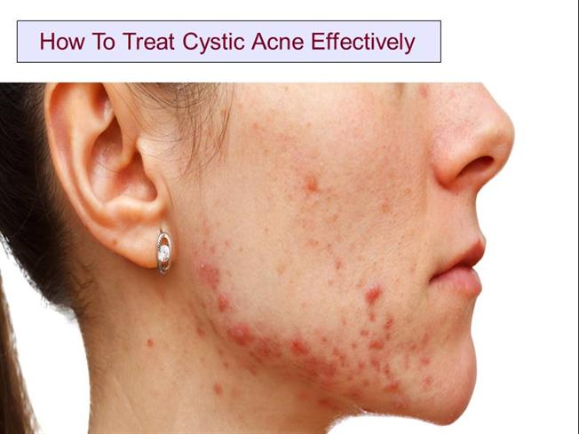 How to Treat Cystic Acne Effectively |authorSTREAM