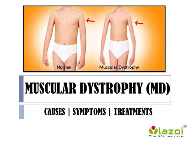 muscular dystrophy md essay
