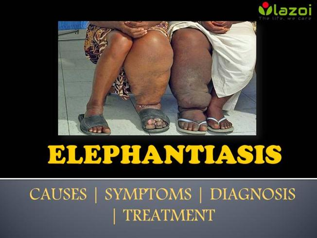 elephantiasis disorder essay Ptsd is defined as an anxiety disorder precipitated by a traumatic event and characterized by symptoms of re even though they encounter fewer traumatic events.