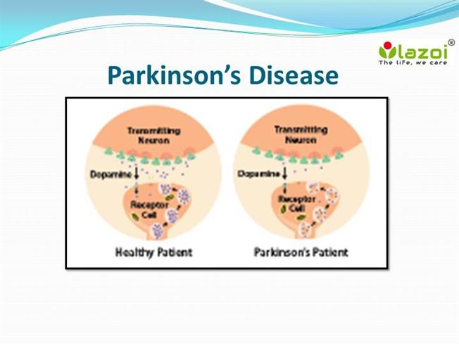causes and effects of parkinson s disease