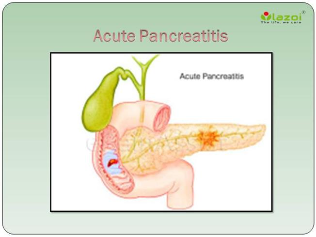 pancreatitis an inflammation of the pancreas Pancreatitis is inflammation of the pancreas, which can be either acute or chronic.