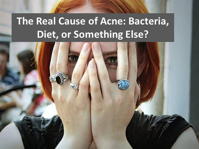 Top 7 Foods That Can Cause Acne