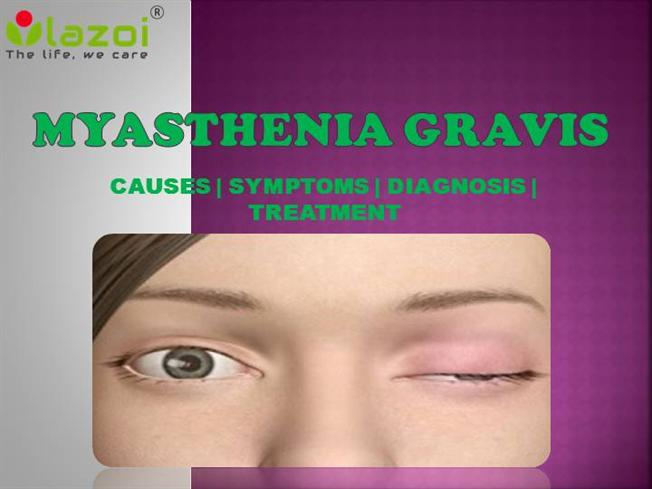 the symptoms and causes of myasthenia gravis