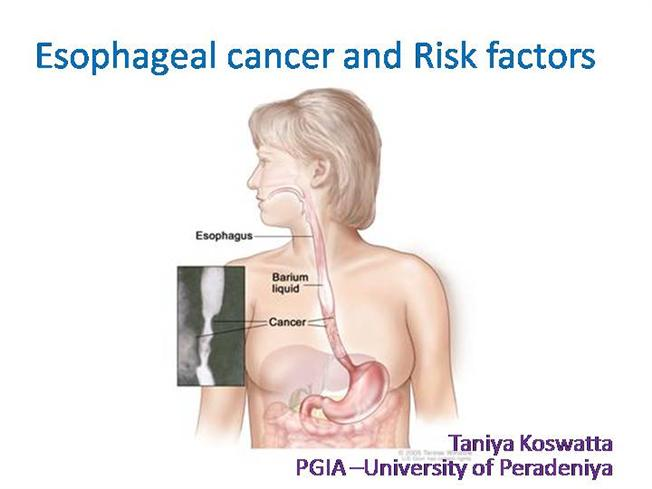 a diagram of an atom of chromium esophageal cancer and risk factors |authorstream